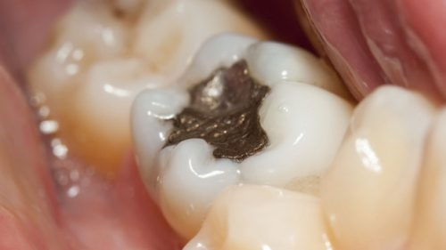 Amalgam fillings are safe for most people