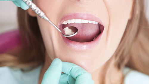 Recycling Dental Amalgam Couldn't Be Easier